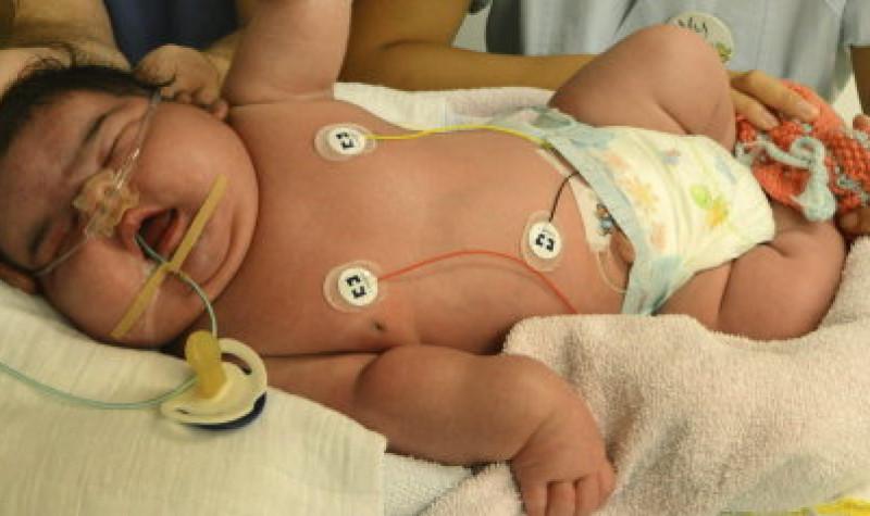 Con 6,11 kilos y sin cesárea: el bebé más grande de Alemania - Gine4